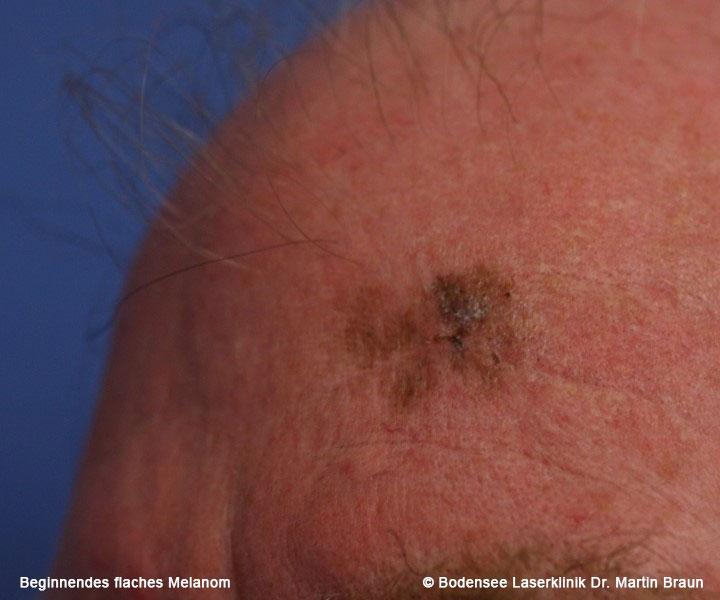 Das Maligne Melanom Bodensee Laserklinik Dr Martin Braun