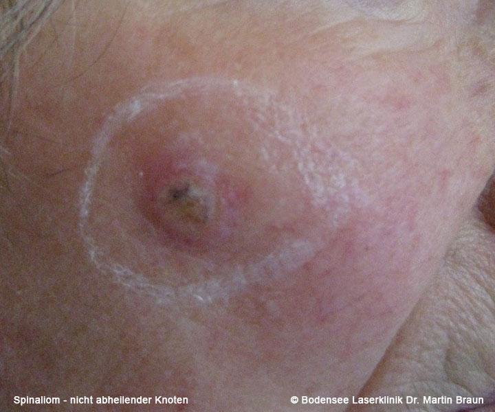 stachelzellkrebs bilder